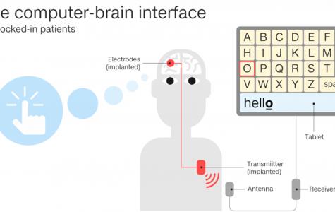 Brain implant allows ALS patient to communicate