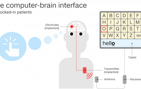 Brain implant allows ALS patient to communicate